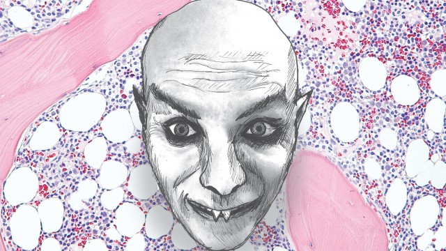 A self-portrait of the author as Nosferatu amid chemo treatments for leukemia.